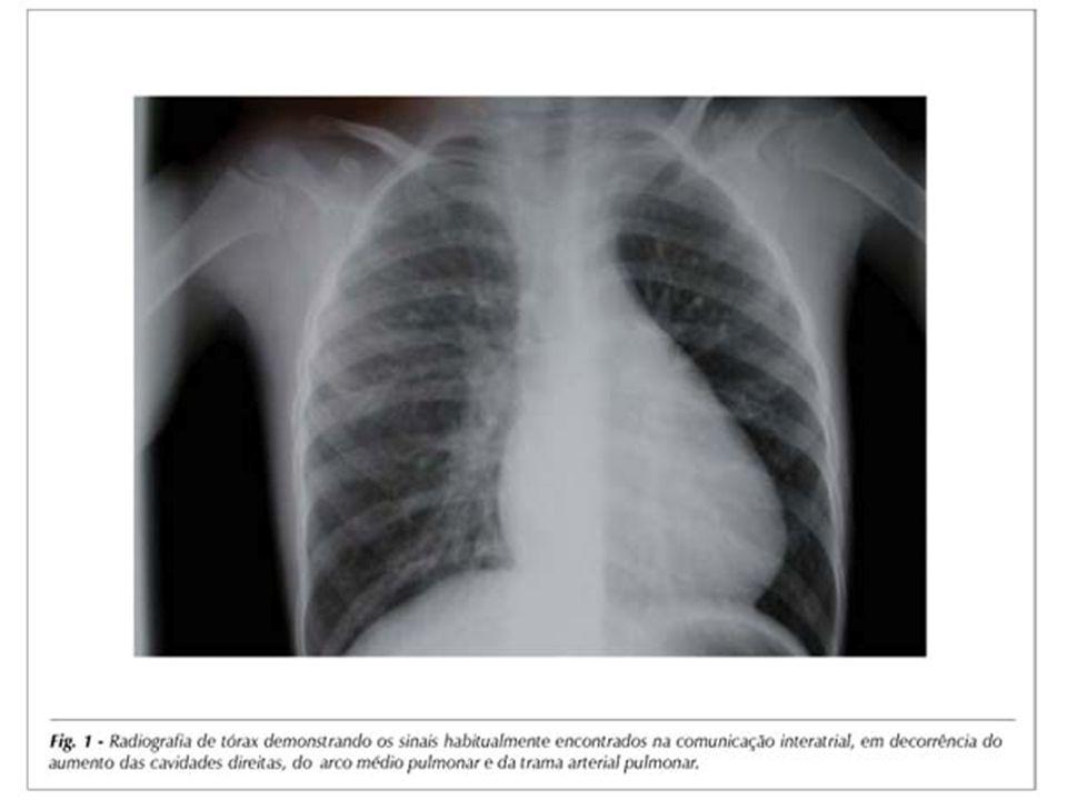ECOCARDIOGRAFIA Método de escolha Sensibilidade 70 a 100% - CIA Tipo e tamanho Direções dos shunts Função VD (movimento paradoxal do septo) Pressão - artéria pulmonar