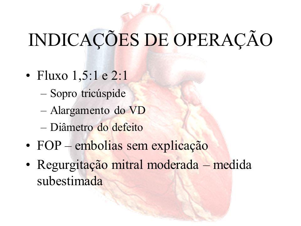 INDICAÇÕES PARA A INTERVENÇÃO Criança –Assintomática Dilatação do coração direito CIA > 5 mm (s/ sinais de fechamento espontâneo)