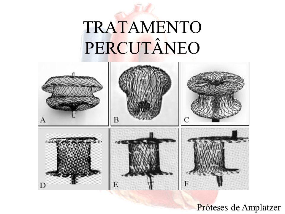 TRATAMENTO CIRÚRGICO Esternotomia mediana ou parcial Toracotomia ântero-lateral direita –Embolia aérea Eco transesofágico CO 2 –Lesão do nervo frênico