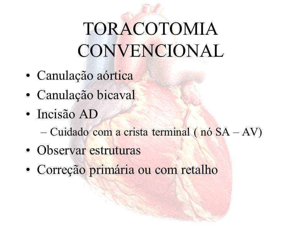 TORACOTOMIA CONVENCIONAL Fio de polipropileno 5-0 ou 4-0 Pericárdio autólogo, bovino, porcino e Dacron