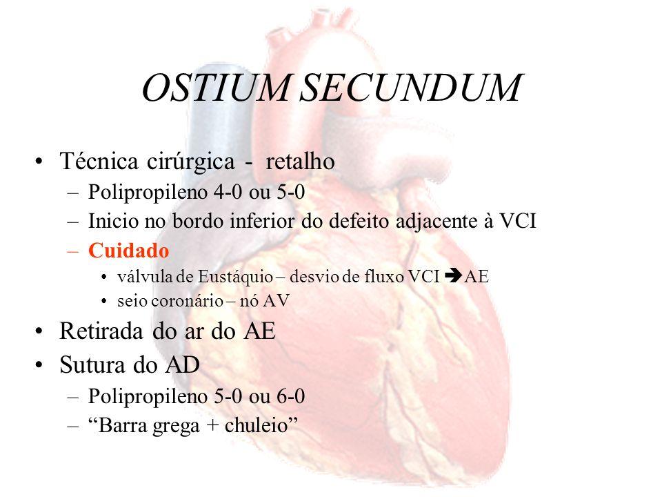 OSTIUM SECUNDUM Técnica cirúrgica - retalho –Polipropileno 4-0 ou 5-0 –Inicio no bordo inferior do defeito adjacente à VCI –Cuidado válvula de Eustáqu