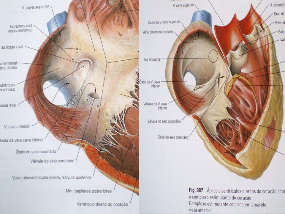 TIPO SEIO VENOSO Técnica cirúrgica –Incisão topo do apêndice atrial direito em direção à junção cavoatrial / Quando necessário estender até VCS –Retalho –Cuidado Fluxo das VVPP AE Lesão do nó sinusal