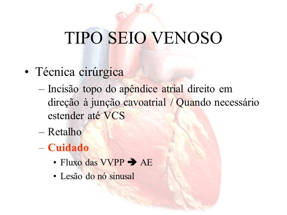 TIPO SEIO VENOSO Técnica cirúrgica –Incisão topo do apêndice atrial direito em direção à junção cavoatrial / Quando necessário estender até VCS –Retal
