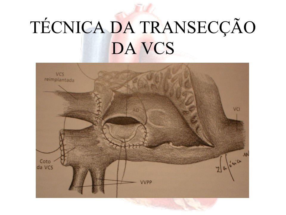 TIPO SEIO CORONÁRIO Técnica cirúrgica –Retalho –Cuidado Drenagem venosa Lesão do nó AV