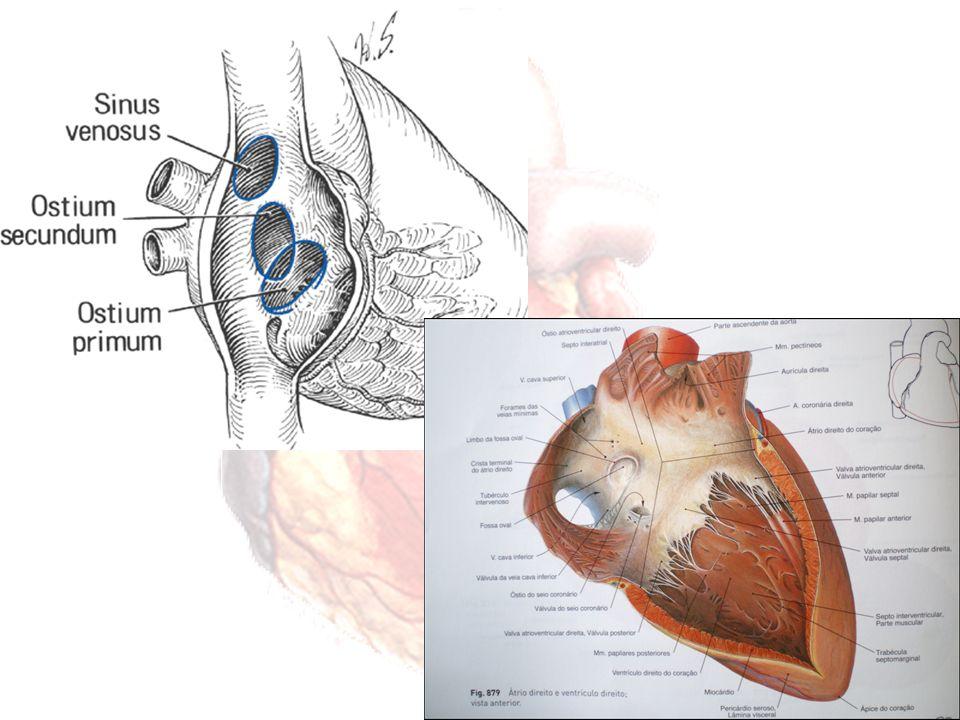 TIPO OSTIUM SECUNDUM Reabsorção do septum primum Deficiência do crescimento septum secundum Limites da fossa oval 80% CIA Permeabilidade do forame oval – deficiência mínima – máxima