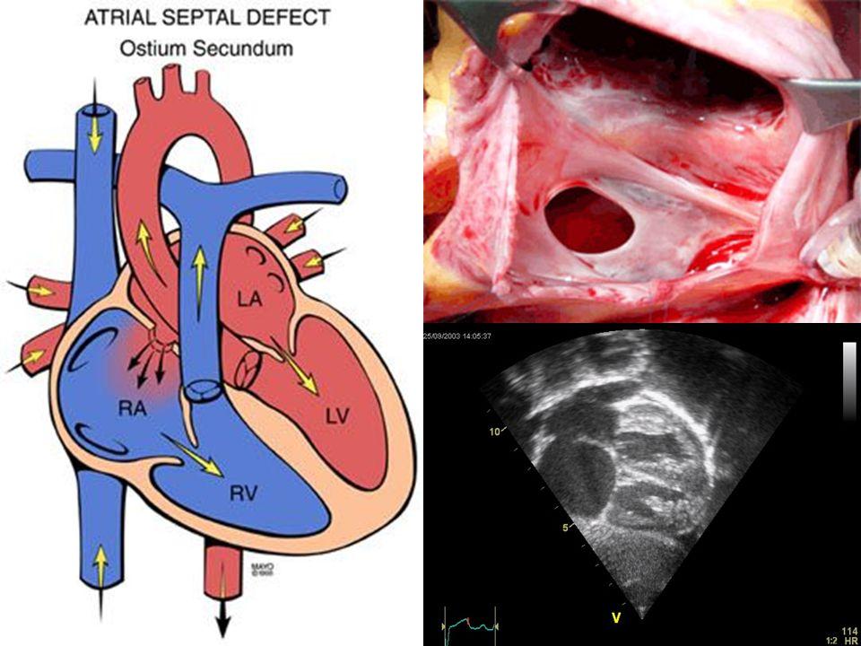 TIPO SEIO VENOSO 10% CIA Junção da veia cava superior com AD Associação com conexão anômala das veias pulmonares (direita >> esquerda) Cava inferior - incomum