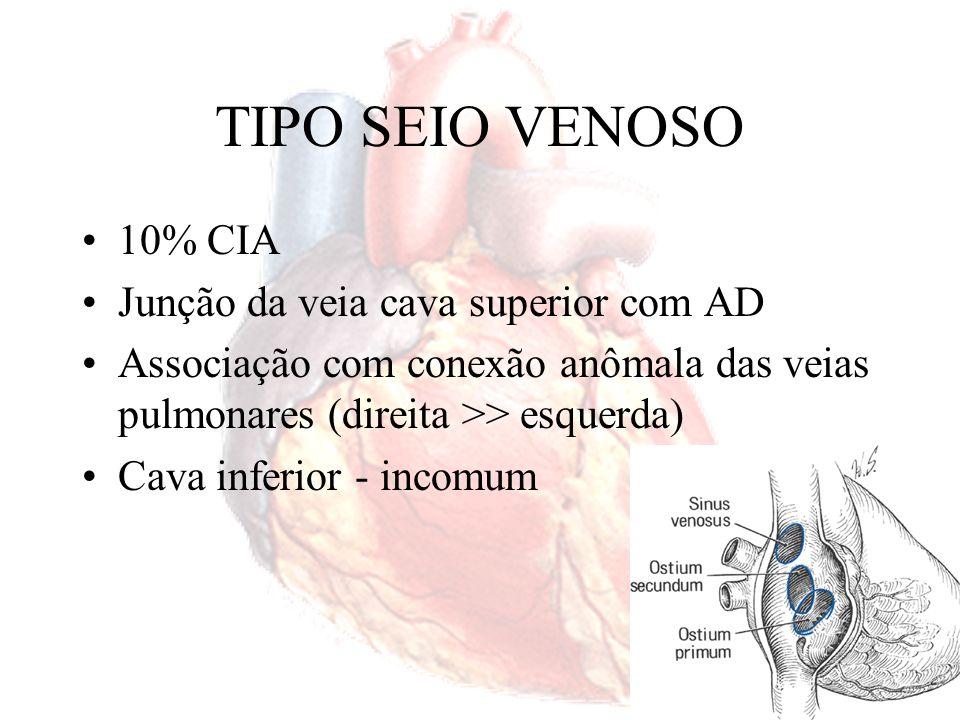 TIPO SEIO VENOSO 10% CIA Junção da veia cava superior com AD Associação com conexão anômala das veias pulmonares (direita >> esquerda) Cava inferior -