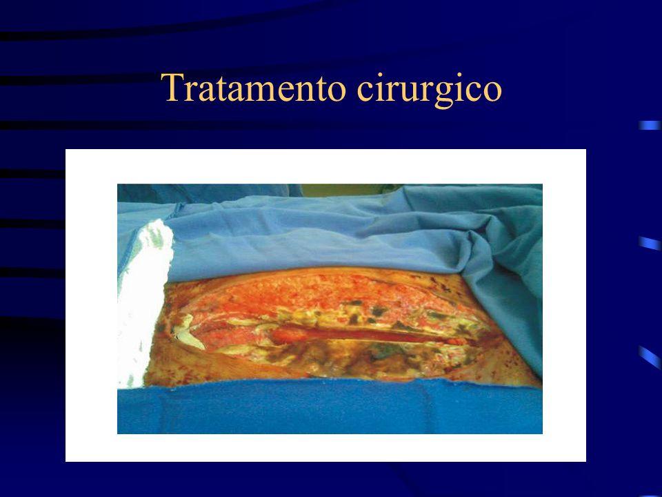 Tratamento cirurgico