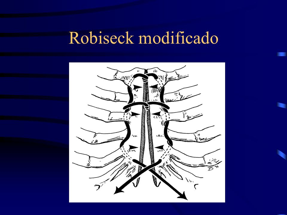 Robiseck modificado