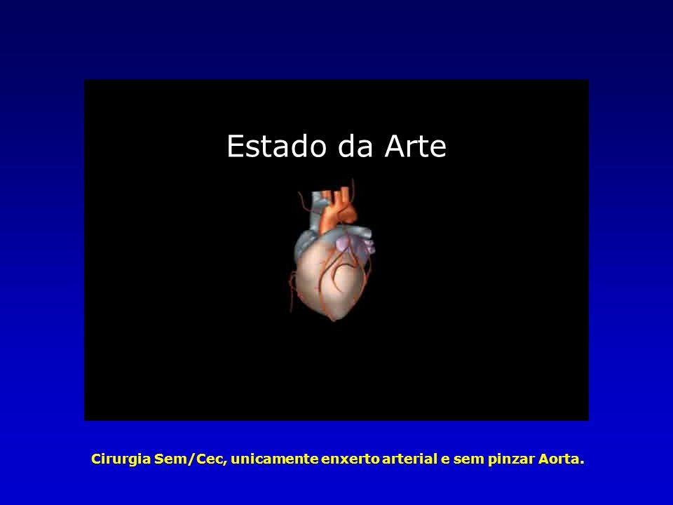 Estado da Arte Cirurgia Sem/Cec, unicamente enxerto arterial e sem pinzar Aorta.