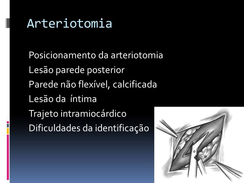Arteriotomia Posicionamento da arteriotomia Lesão parede posterior Parede não flexível, calcificada Lesão da íntima Trajeto intramiocárdico Dificuldad