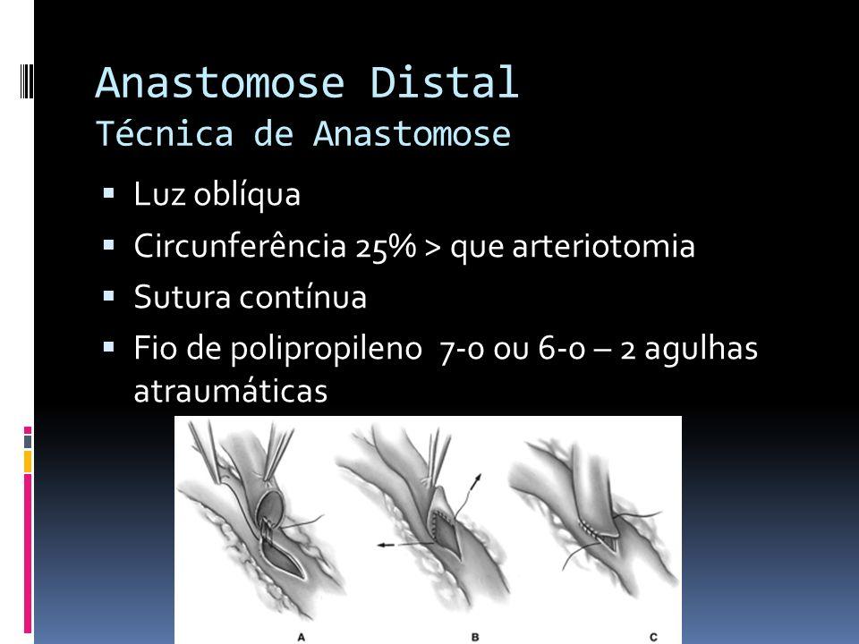 Anastomose Distal Técnica de Anastomose Luz oblíqua Circunferência 25% > que arteriotomia Sutura contínua Fio de polipropileno 7-0 ou 6-0 – 2 agulhas