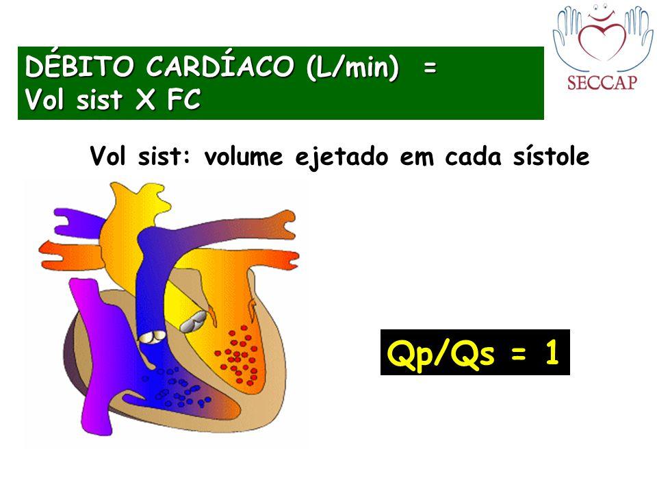 DÉBITO CARDÍACO (L/min) = Vol sist X FC Qp/Qs = 1 Vol sist: volume ejetado em cada sístole