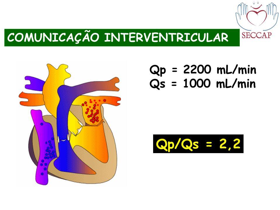 COMUNICAÇÃO INTERVENTRICULAR Qp = 2200 mL/min Qs = 1000 mL/min Qp/Qs = 2,2