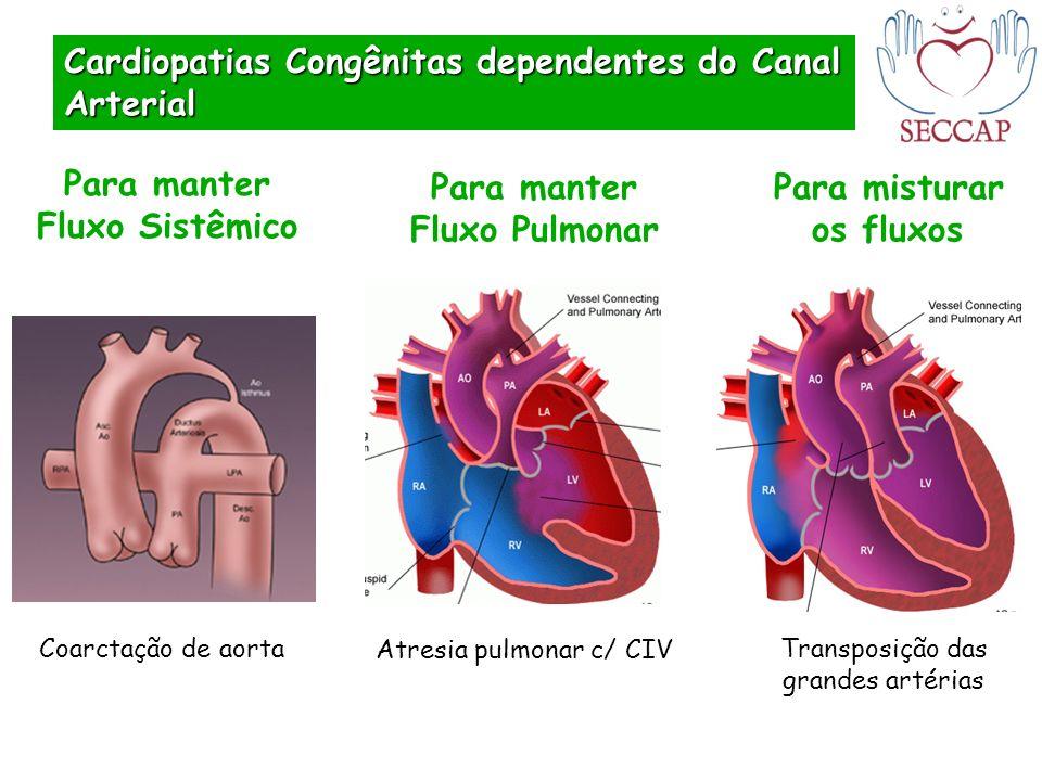 Cardiopatias Congênitas dependentes do Canal Arterial Para manter Fluxo Sistêmico Para manter Fluxo Pulmonar Para misturar os fluxos Coarctação de aor