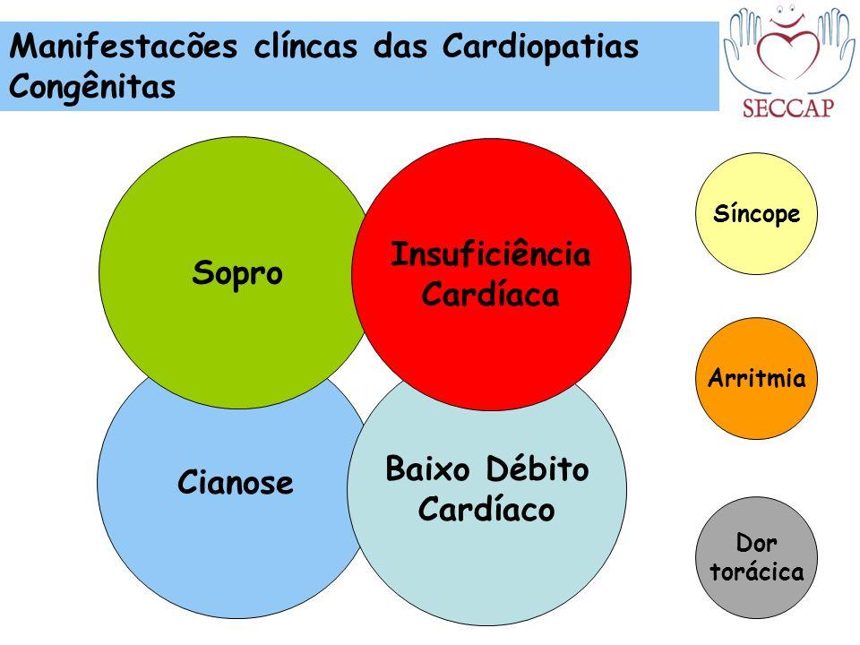 Cianose Sopro Baixo Débito Cardíaco Manifestacões clíncas das Cardiopatias Congênitas Arritmia Síncope Dor torácica Insuficiência Cardíaca