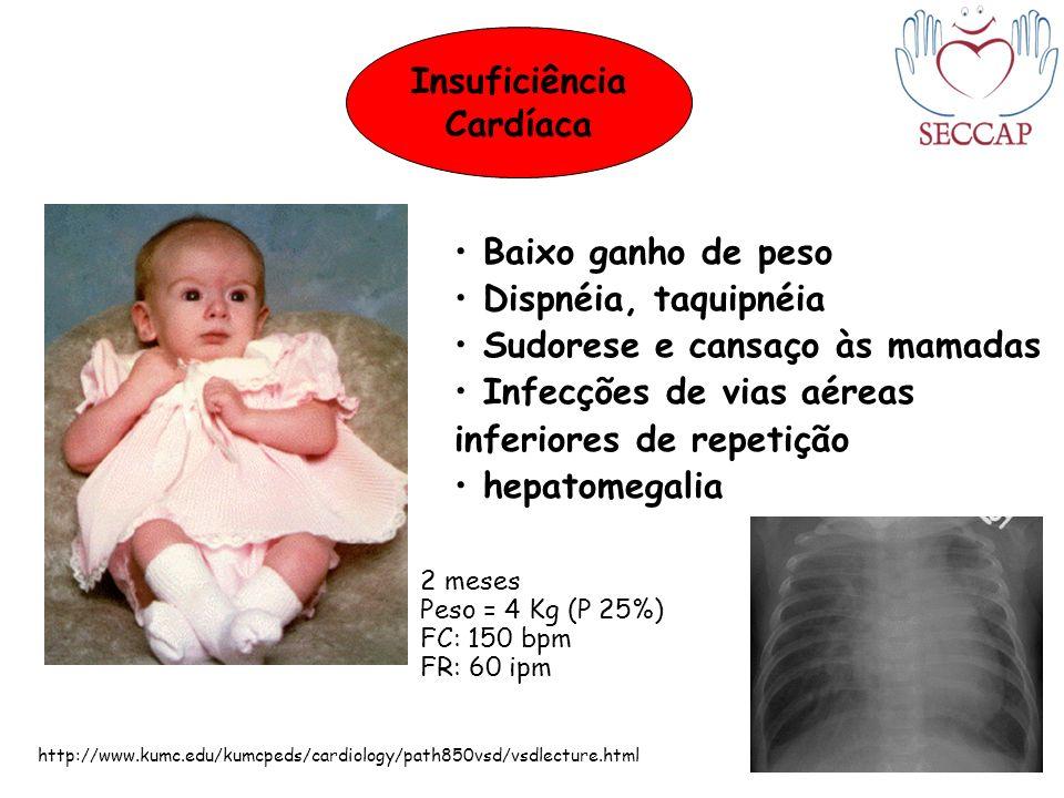 Baixo ganho de peso Dispnéia, taquipnéia Sudorese e cansaço às mamadas Infecções de vias aéreas inferiores de repetição hepatomegalia Insuficiência Ca