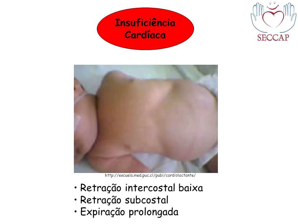 Retração intercostal baixa Retração subcostal Expiração prolongada http://escuela.med.puc.cl/publ/cardiolactante/ Insuficiência Cardíaca