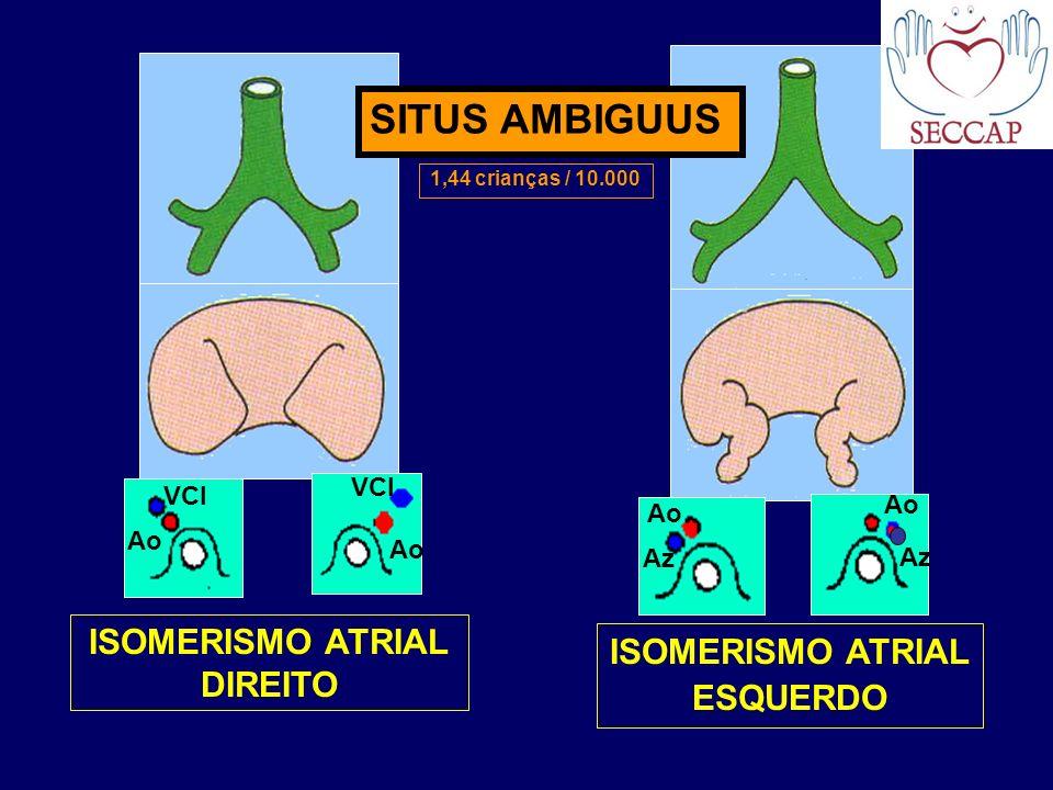 ISOMERISMO ATRIAL DIREITO ISOMERISMO ATRIAL ESQUERDO SITUS AMBIGUUS Ao VCI Az VCI 1,44 crianças / 10.000