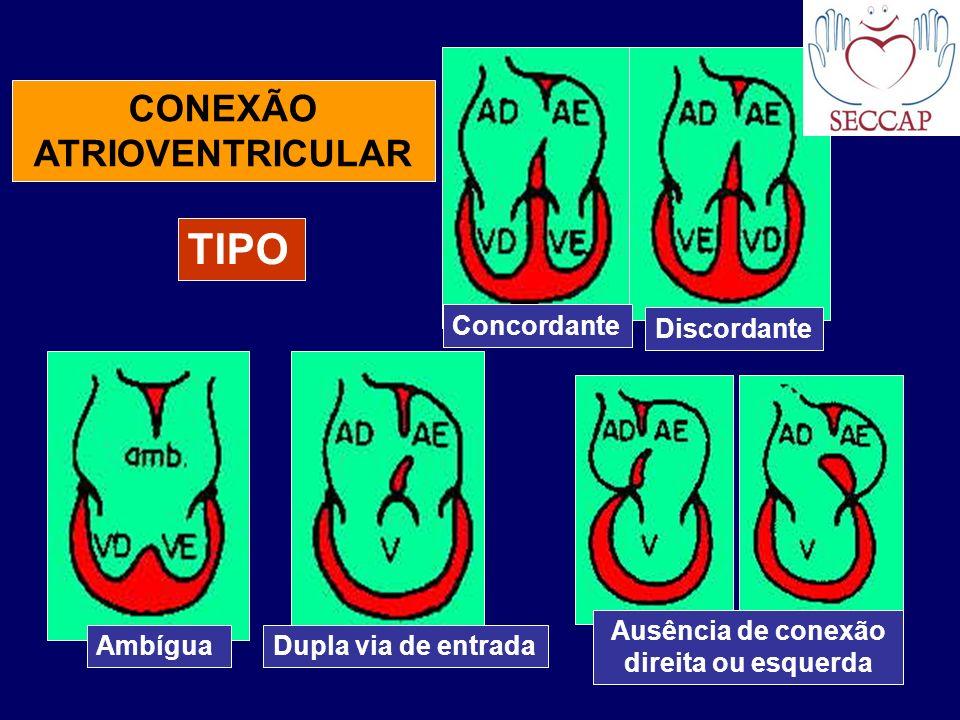 CONEXÃO ATRIOVENTRICULAR Concordante Discordante AmbíguaDupla via de entrada Ausência de conexão direita ou esquerda TIPO