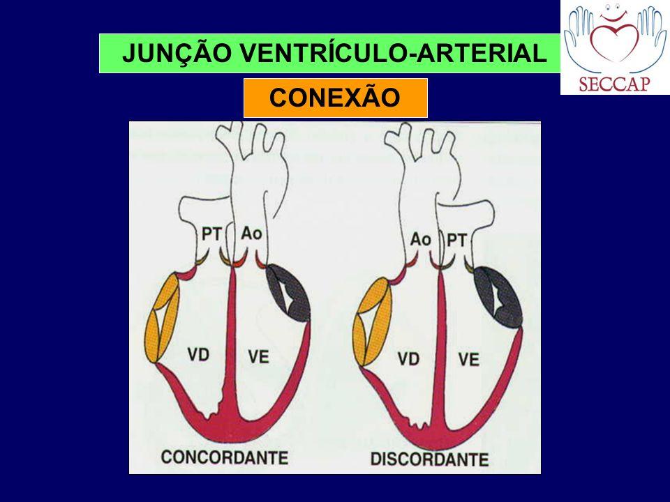 JUNÇÃO VENTRÍCULO-ARTERIAL CONEXÃO