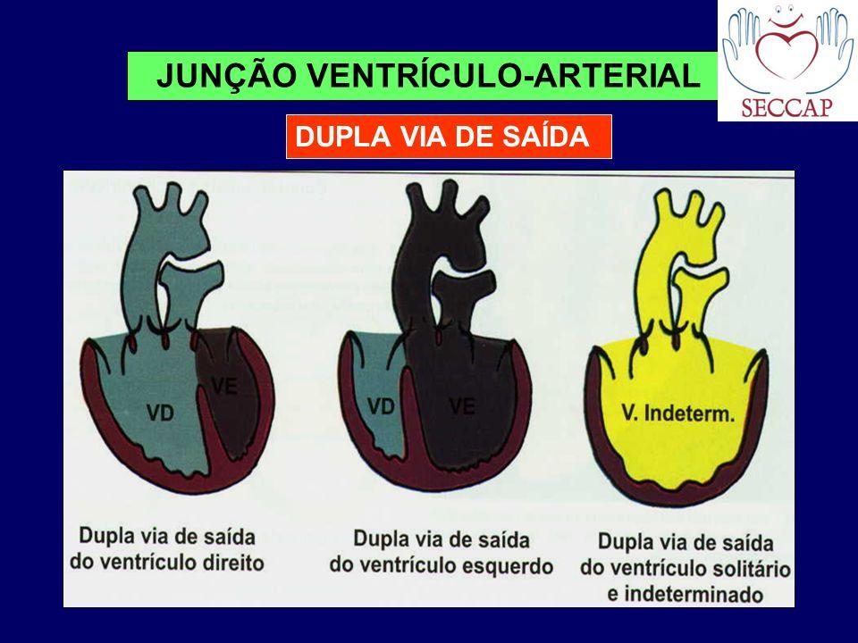 DUPLA VIA DE SAÍDA JUNÇÃO VENTRÍCULO-ARTERIAL