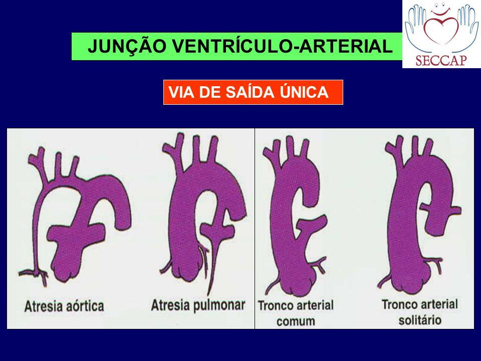 VIA DE SAÍDA ÚNICA JUNÇÃO VENTRÍCULO-ARTERIAL