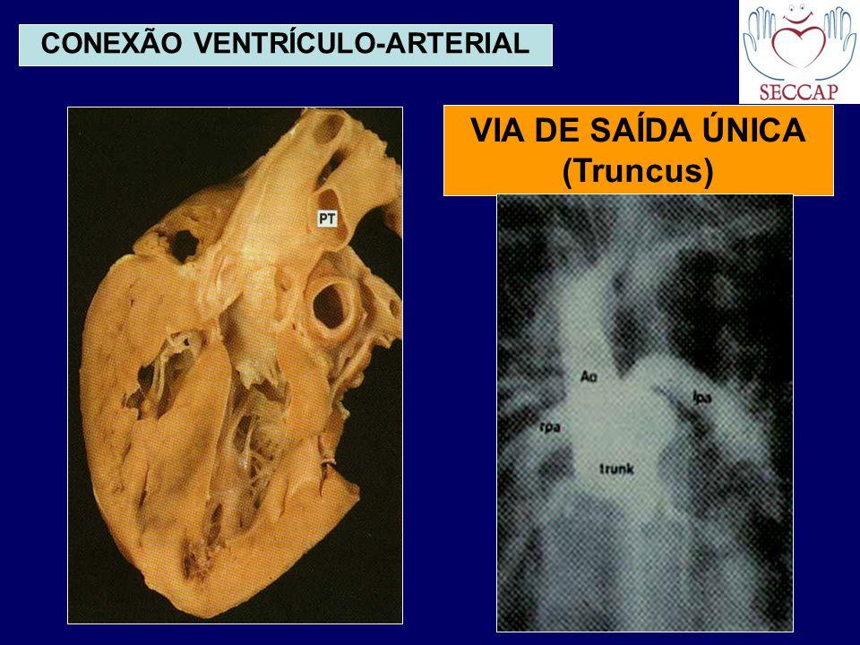 CONEXÃO VENTRÍCULO-ARTERIAL VIA DE SAÍDA ÚNICA (Truncus)