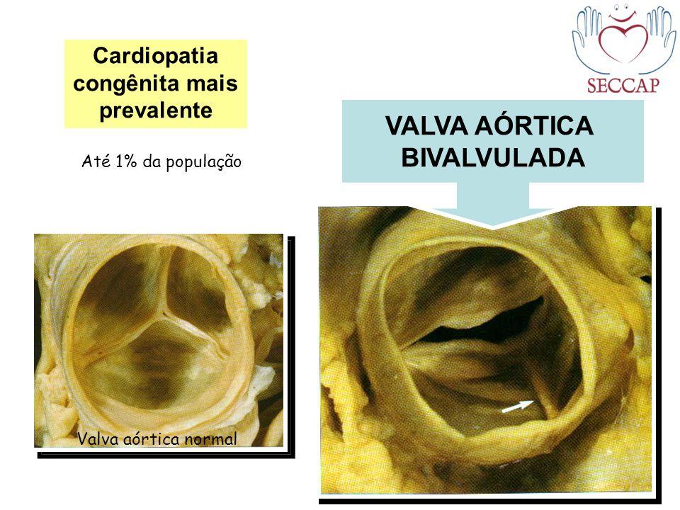 VALVA AÓRTICA BIVALVULADA Cardiopatia congênita mais prevalente Valva aórtica normal Até 1% da população