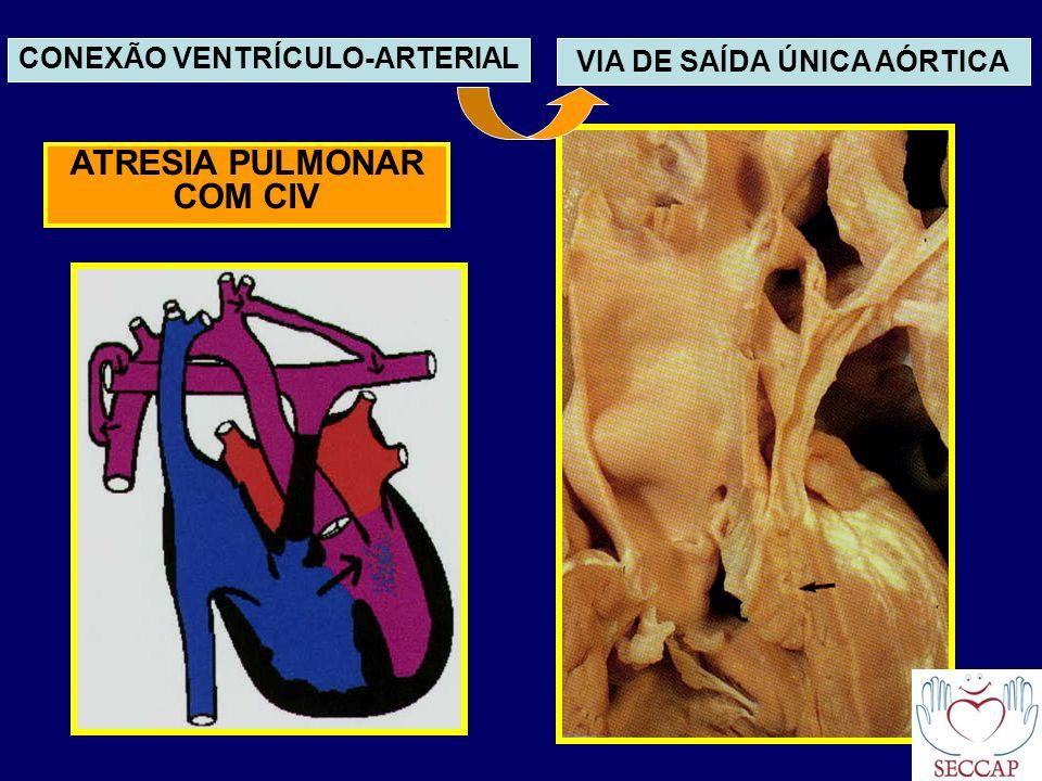 ATRESIA PULMONAR COM CIV CONEXÃO VENTRÍCULO-ARTERIAL VIA DE SAÍDA ÚNICA AÓRTICA