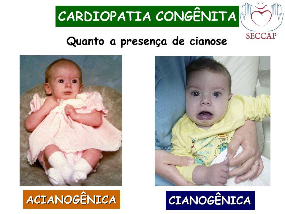 CARDIOPATIA CONGÊNITA ACIANOGÊNICA CIANOGÊNICA Quanto a presença de cianose