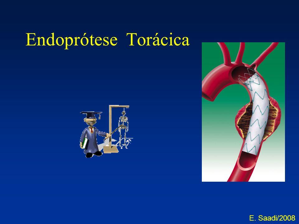 Endoprótese Torácica E. Saadi/2008
