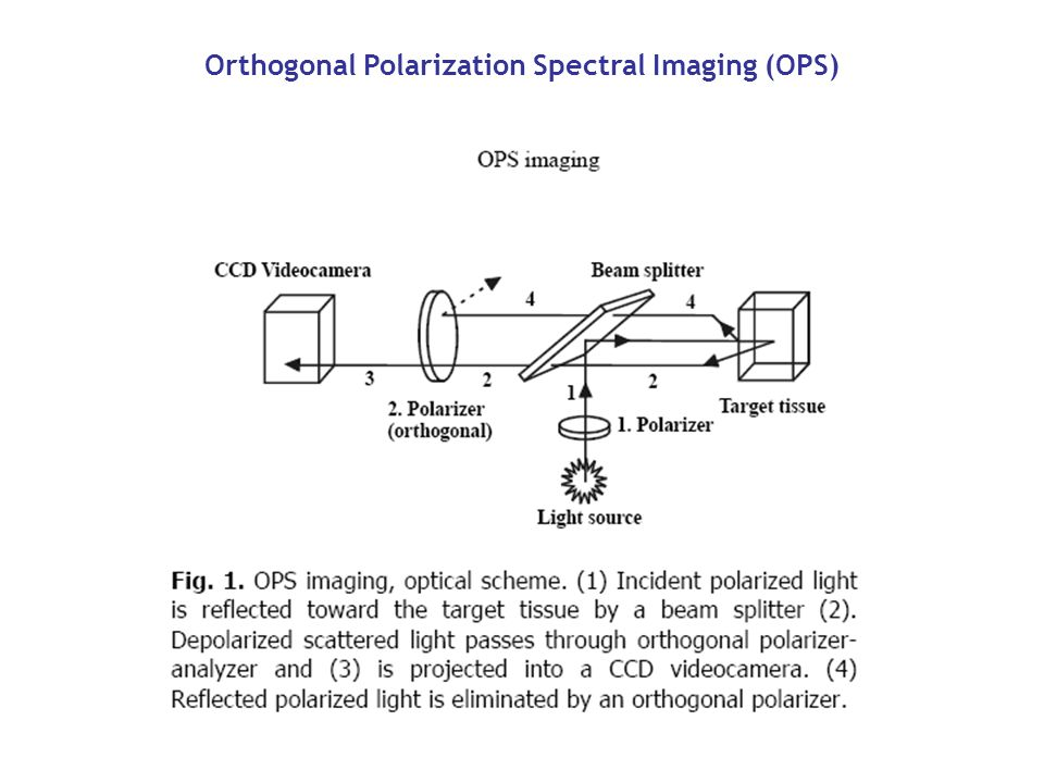 Orthogonal Polarization Spectral Imaging (OPS)