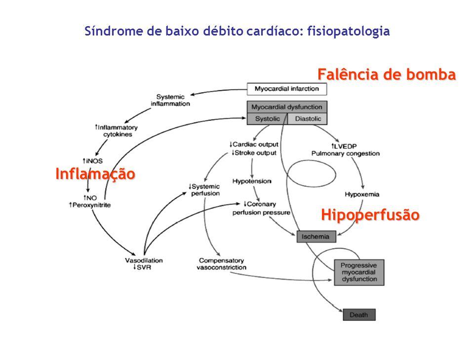Síndrome de baixo débito cardíaco: fisiopatologia Falência de bomba Inflamação Hipoperfusão