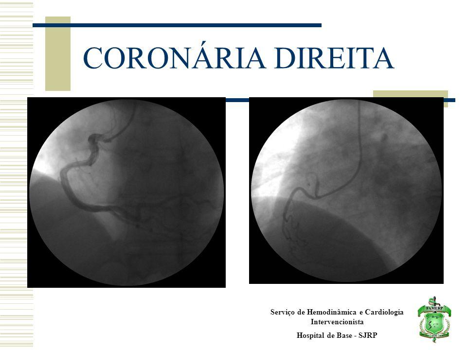 Serviço de Hemodinâmica e Cardiologia Intervencionista Hospital de Base - SJRP CORONÁRIA DIREITA