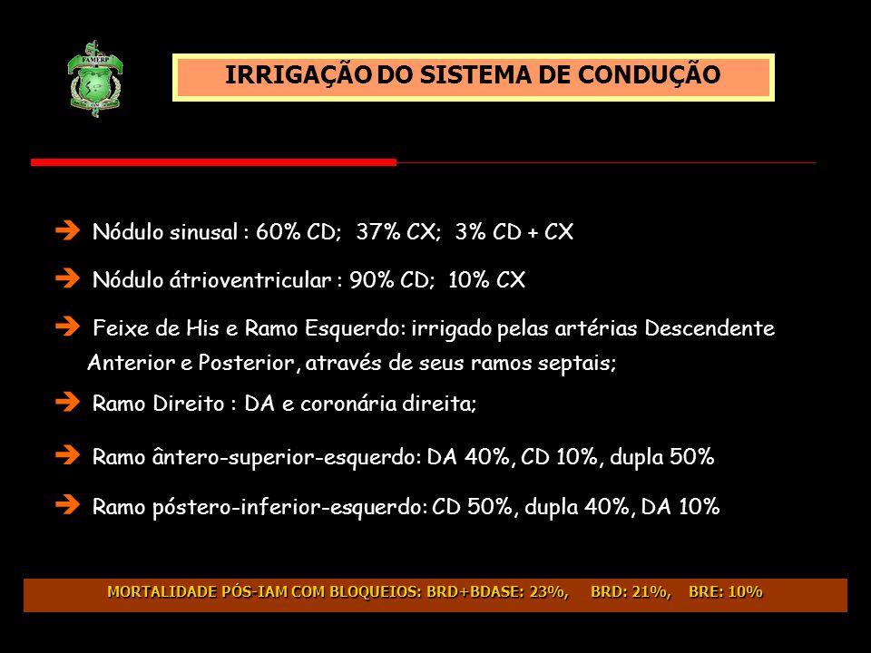 Nódulo sinusal : 60% CD; 37% CX; 3% CD + CX IRRIGAÇÃO DO SISTEMA DE CONDUÇÃO Nódulo átrioventricular : 90% CD; 10% CX Ramo Direito : DA e coronária di