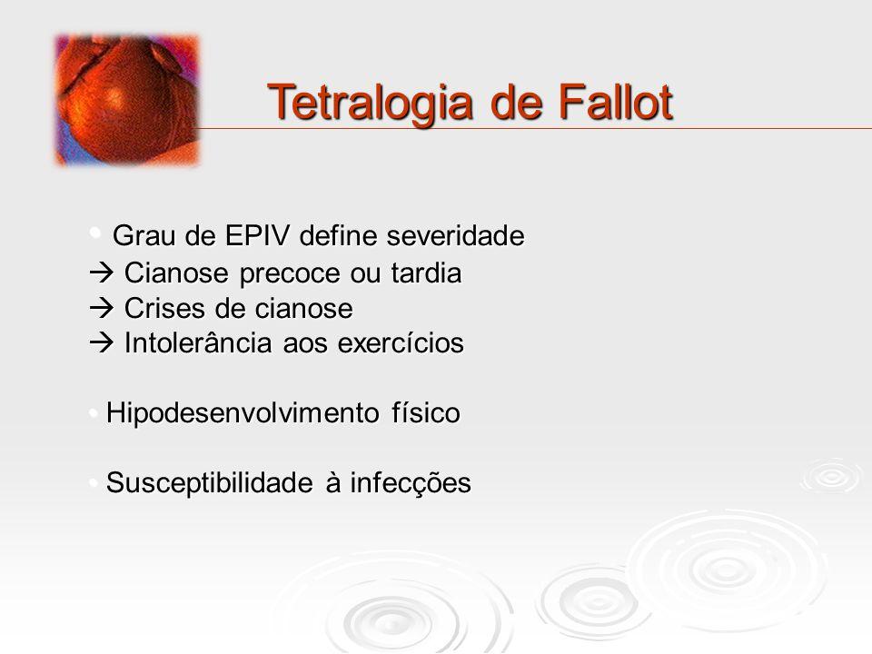 Tetralogia de Fallot Grau de EPIV define severidade Grau de EPIV define severidade Cianose precoce ou tardia Cianose precoce ou tardia Crises de ciano