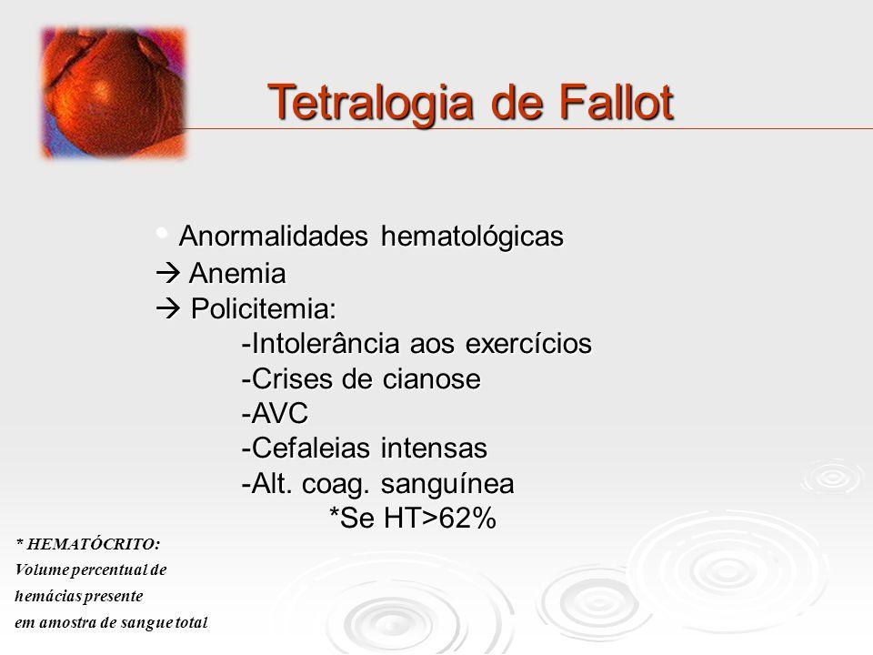 Tetralogia de Fallot Anormalidades hematológicas Anormalidades hematológicas Anemia Anemia Policitemia: Policitemia: -Intolerância aos exercícios -Cri