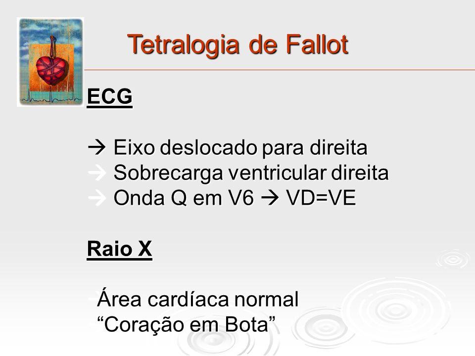 Tetralogia de Fallot ECG Eixo deslocado para direita Eixo deslocado para direita Sobrecarga ventricular direita Sobrecarga ventricular direita Onda Q