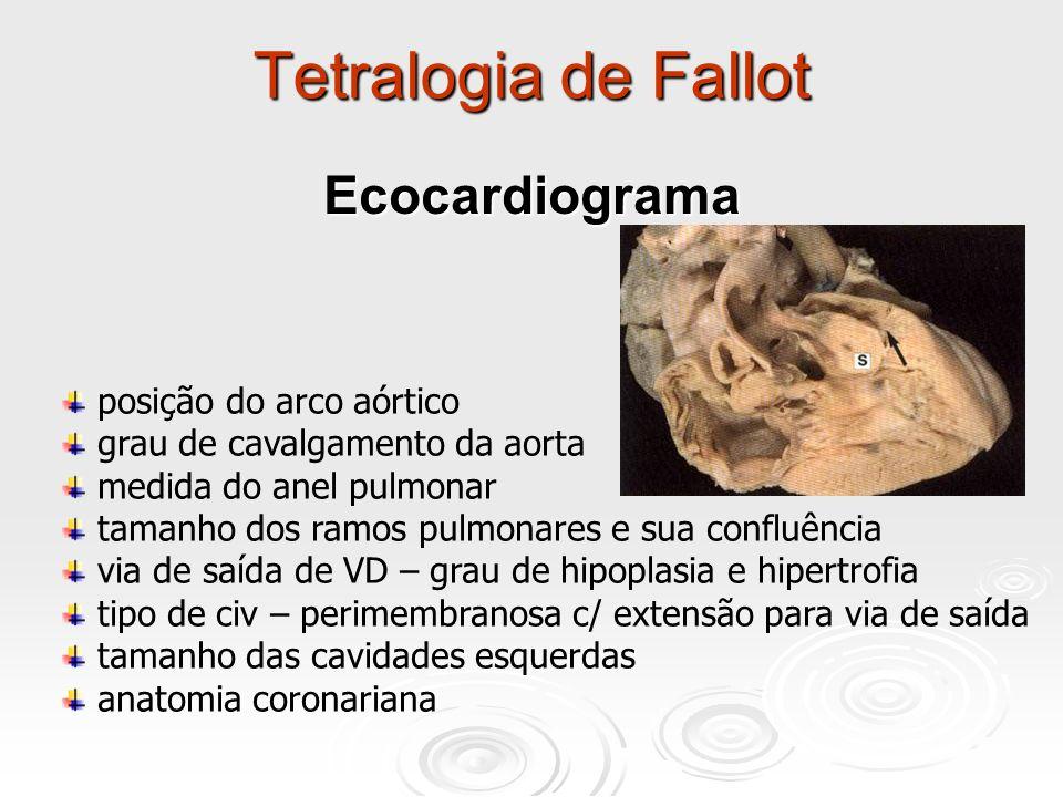 Tetralogia de Fallot posição do arco aórtico grau de cavalgamento da aorta medida do anel pulmonar tamanho dos ramos pulmonares e sua confluência via