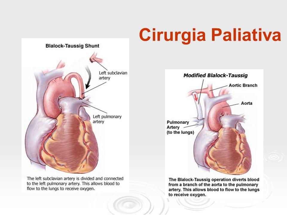 Cirurgia Paliativa