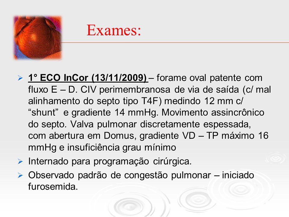 1° ECO InCor (13/11/2009) – forame oval patente com fluxo E – D. CIV perimembranosa de via de saída (c/ mal alinhamento do septo tipo T4F) medindo 12