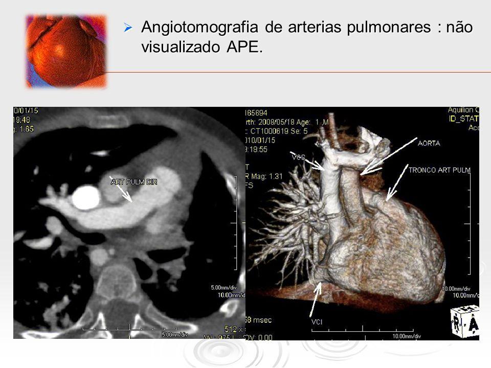 Angiotomografia de arterias pulmonares : não visualizado APE. Angiotomografia de arterias pulmonares : não visualizado APE.
