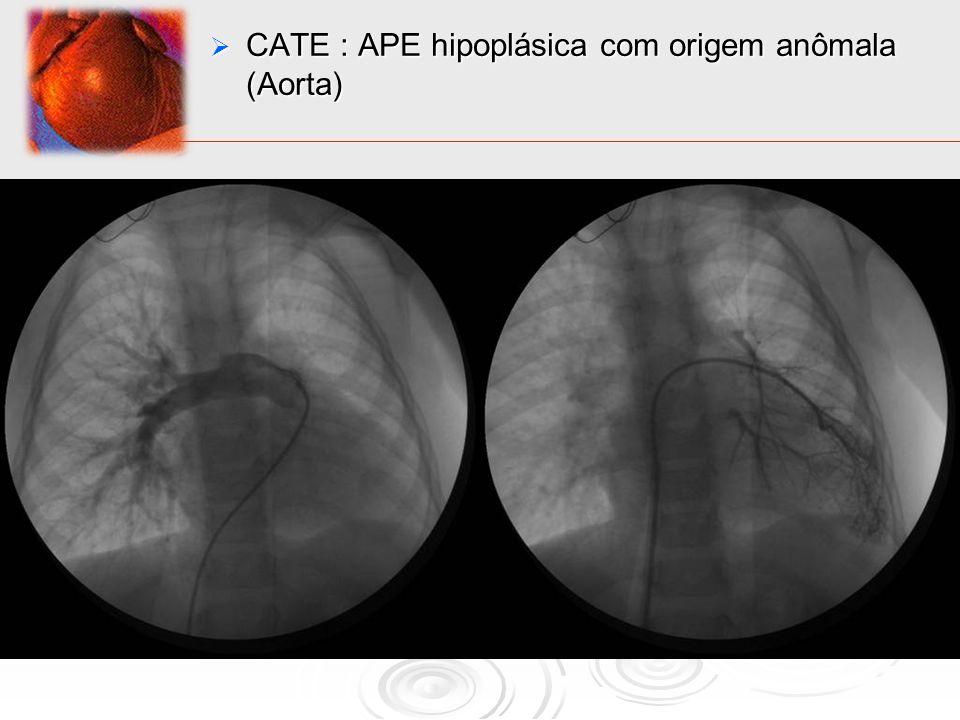 CATE : APE hipoplásica com origem anômala (Aorta) CATE : APE hipoplásica com origem anômala (Aorta)
