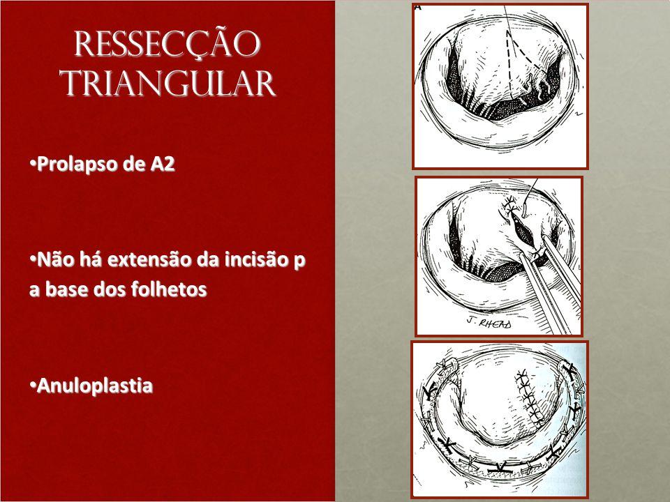 Ressecção triangular Prolapso de A2 Prolapso de A2 Não há extensão da incisão p a base dos folhetos Não há extensão da incisão p a base dos folhetos Anuloplastia Anuloplastia