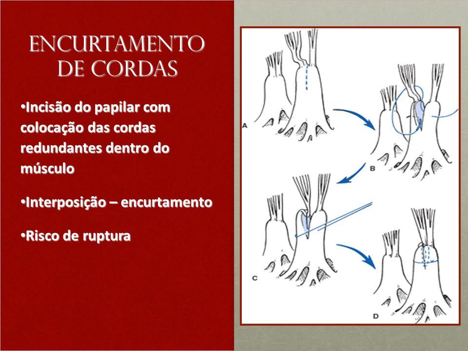Encurtamento de cordas Incisão do papilar com colocação das cordas redundantes dentro do músculo Incisão do papilar com colocação das cordas redundantes dentro do músculo Interposição – encurtamento Interposição – encurtamento Risco de ruptura Risco de ruptura