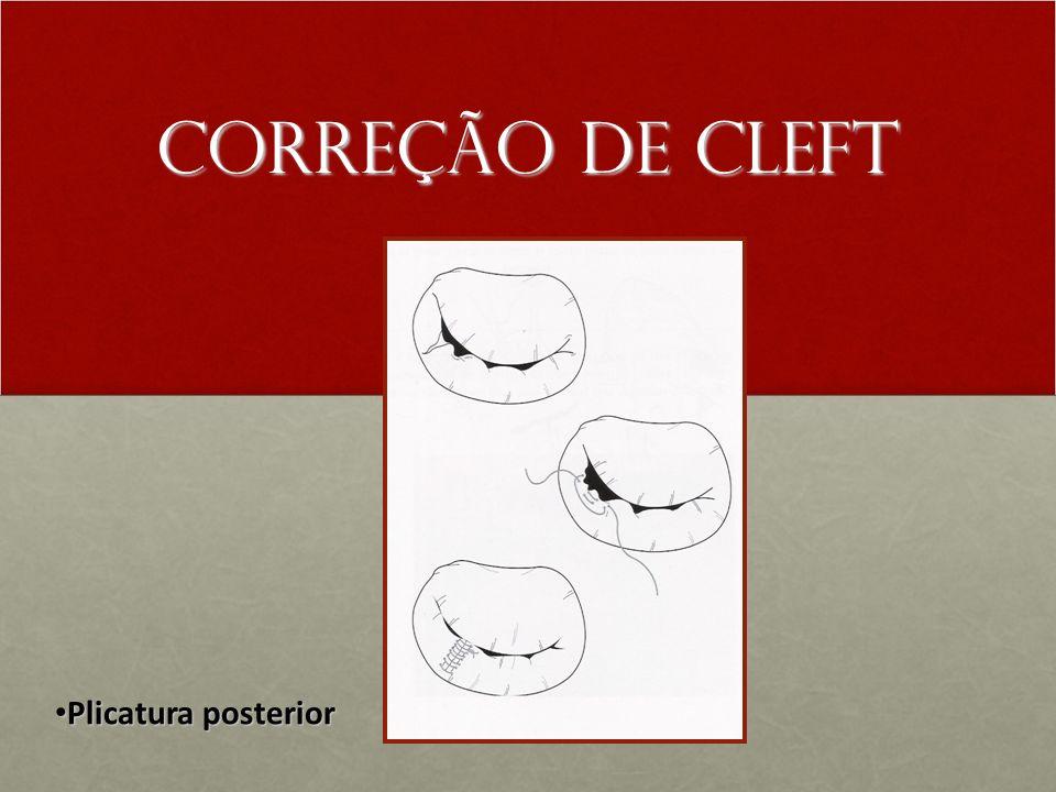 Correção de Cleft Plicatura posterior Plicatura posterior