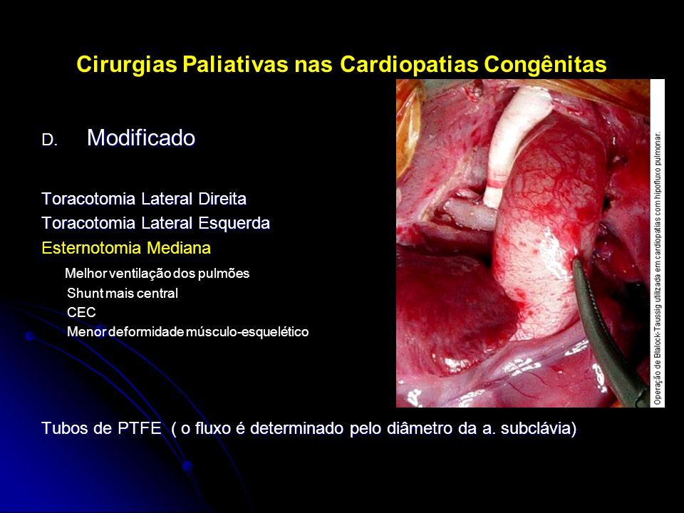 Cirurgias Paliativas nas Cardiopatias Congênitas D. Modificado Toracotomia Lateral Direita Toracotomia Lateral Esquerda Esternotomia Mediana Melhor ve