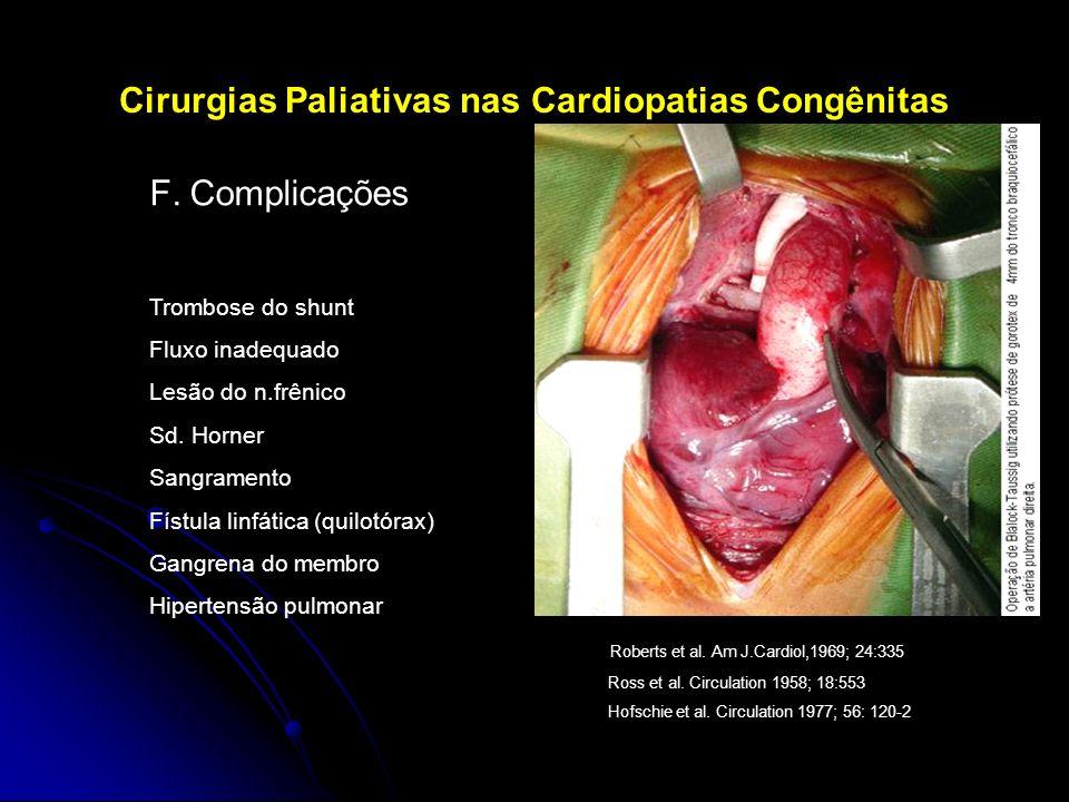 Cirurgias Paliativas nas Cardiopatias Congênitas F.Complicações Trombose do shunt Fluxo inadequado Lesão do n.frênico Sd. Horner Sangramento Fístula l