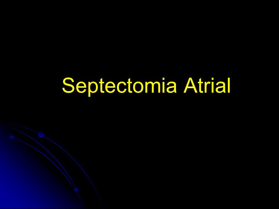 Septectomia Atrial